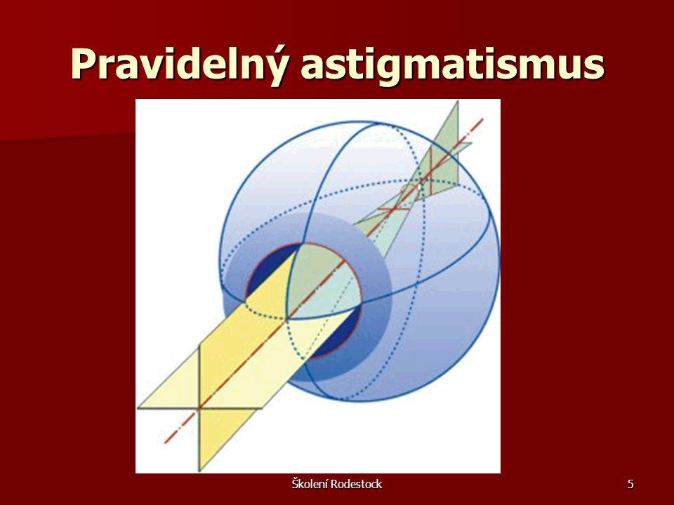 Školení Rodestock6 Rozdělení pravidelného astigmatismu 1.