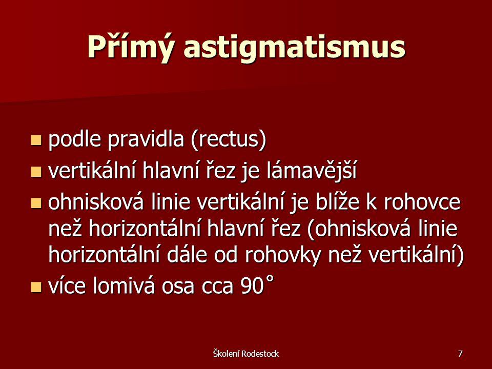 Školení Rodestock18 Javalova podmínka udává nám závislost mezi stupněm očekávaného celkového astigmatismu a astigmatismu rohovky udává nám závislost mezi stupněm očekávaného celkového astigmatismu a astigmatismu rohovky vliv rohovkového astigmatismu na celkový oční astigmatismus vliv rohovkového astigmatismu na celkový oční astigmatismus Ast (C) = 1,25 * Ast (R) ± 0,5 Ast (C) = 1,25 * Ast (R) ± 0,5 + 0,5 ….