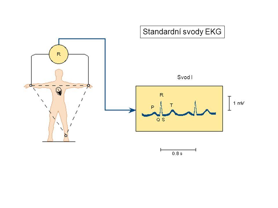 Svod I Standardní svody EKG