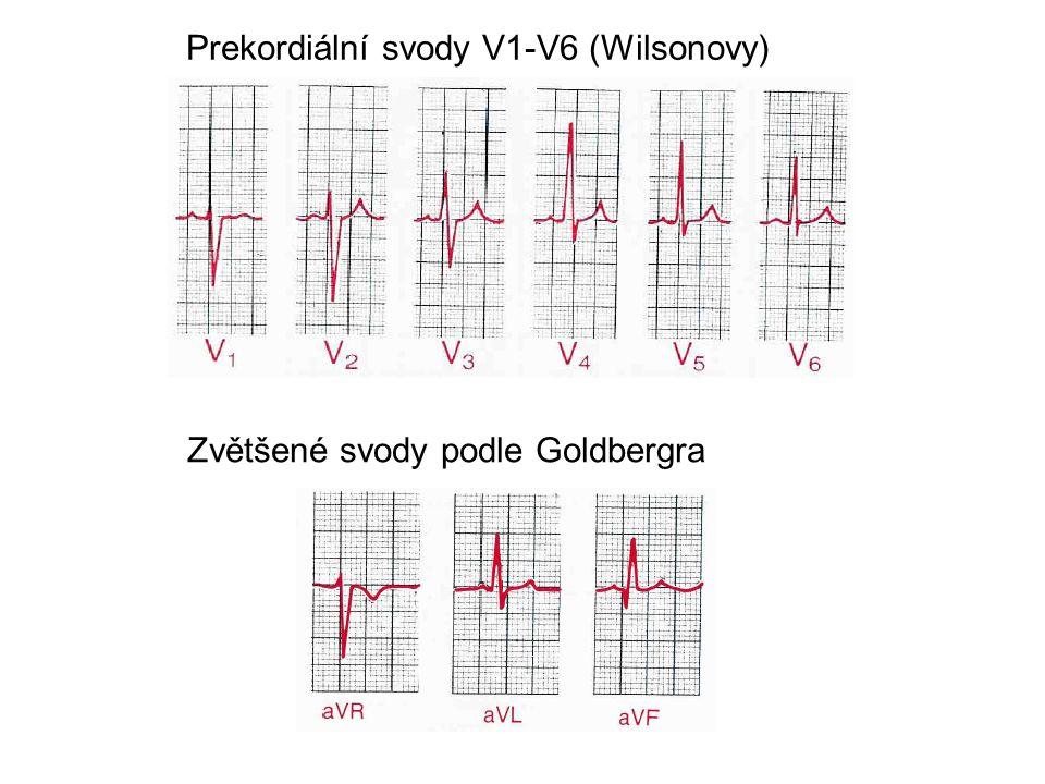 Prekordiální svody V1-V6 (Wilsonovy) Zvětšené svody podle Goldbergra