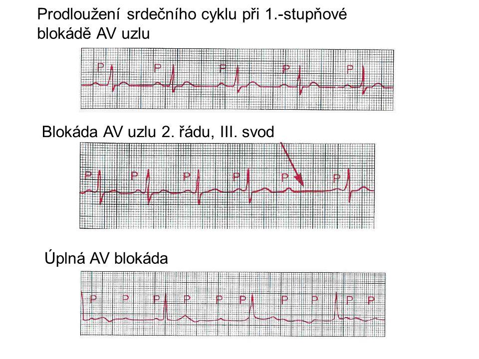 Prodloužení srdečního cyklu při 1.-stupňové blokádě AV uzlu Úplná AV blokáda Blokáda AV uzlu 2. řádu, III. svod