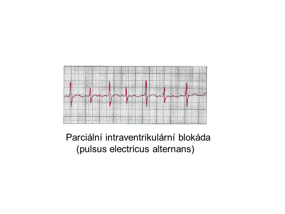 Parciální intraventrikulární blokáda (pulsus electricus alternans)