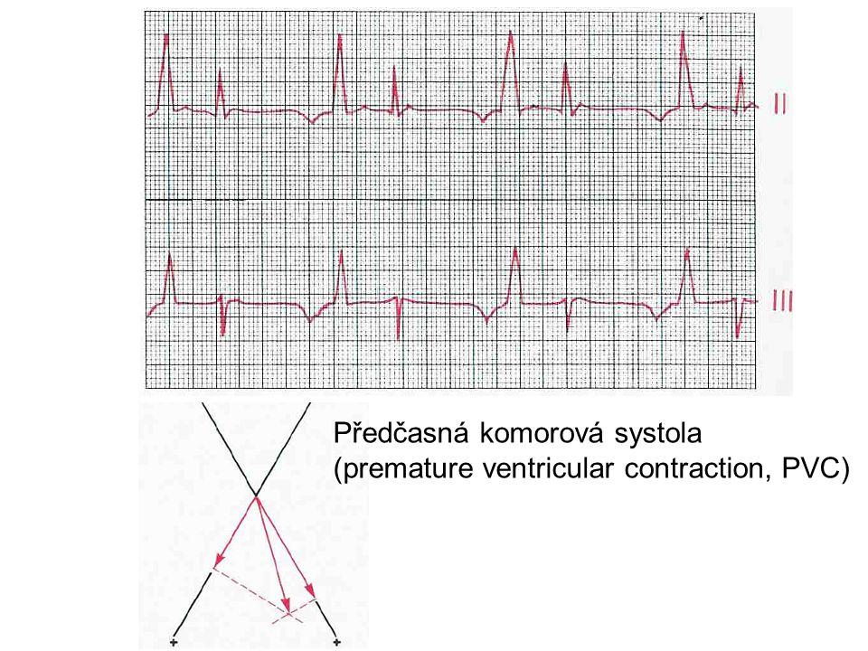 Předčasná komorová systola (premature ventricular contraction, PVC)