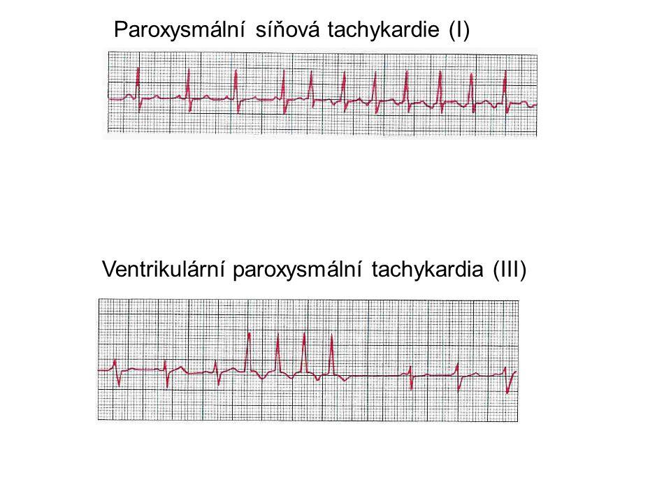 Ventrikulární paroxysmální tachykardia (III) Paroxysmální síňová tachykardie (I)