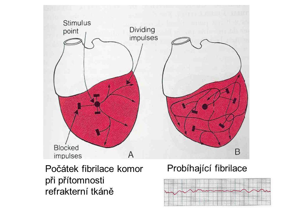 Počátek fibrilace komor při přítomnosti refrakterní tkáně Probíhající fibrilace