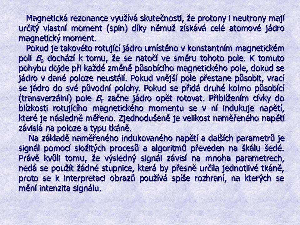 Magnetická rezonance využívá skutečnosti, že protony i neutrony mají určitý vlastní moment (spin) díky němuž získává celé atomové jádro magnetický mom