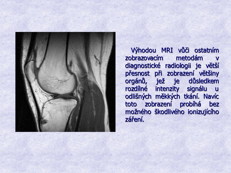 Výhodou MRI vůči ostatním zobrazovacím metodám v diagnostické radiologii je větší přesnost při zobrazení většiny orgánů, jež je důsledkem rozdílné int