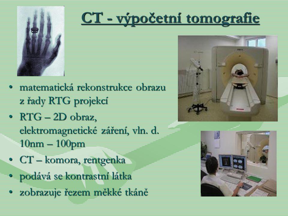 CT - výpočetní tomografie matematická rekonstrukce obrazu z řady RTG projekcímatematická rekonstrukce obrazu z řady RTG projekcí RTG – 2D obraz, elekt