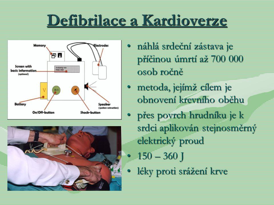 Defibrilace a Kardioverze náhlá srdeční zástava je příčinou úmrtí až 700 000 osob ročně metoda, jejímž cílem je obnovení krevního oběhu přes povrch hr