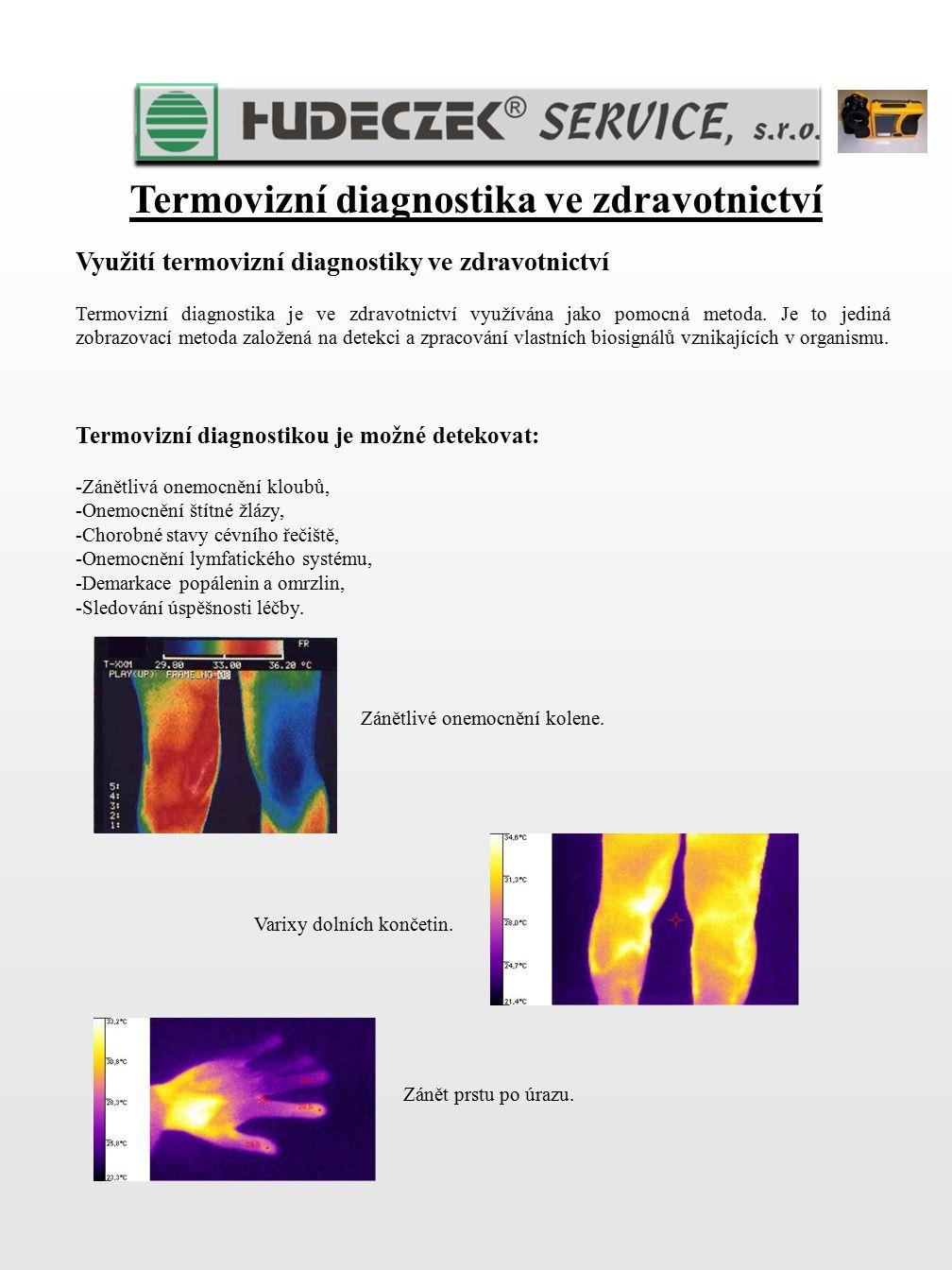 Termovizní diagnostika ve zdravotnictví Využití termovizní diagnostiky ve zdravotnictví Termovizní diagnostika je ve zdravotnictví využívána jako pomo
