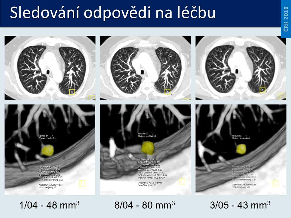 Sledování odpovědi na léčbu 1/04 - 48 mm 3 8/04 - 80 mm 3 3/05 - 43 mm 3 ČRK 2010