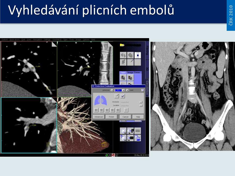Vyhledávání plicních embolů ČRK 2010