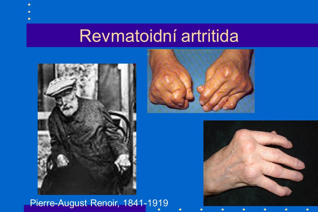 Revmatoidní artritida Pierre-August Renoir, 1841-1919