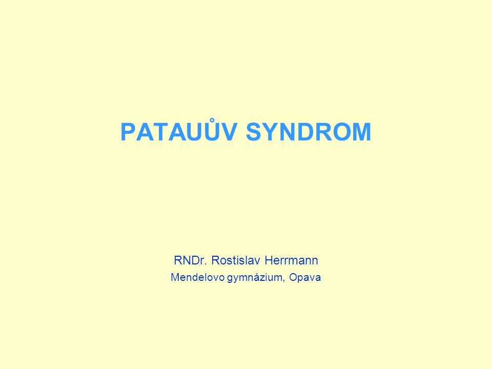 PATAUŮV SYNDROM Je způsoben trizomií 13.