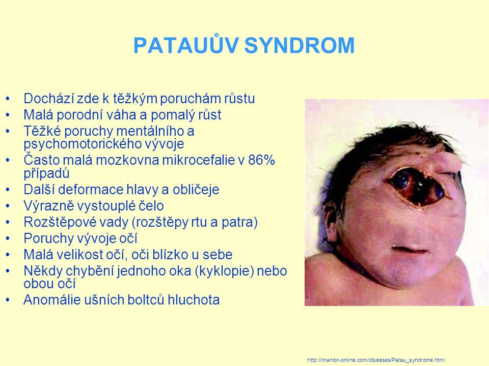 PATAUŮV SYNDROM Dochází zde k těžkým poruchám růstu Malá porodní váha a pomalý růst Těžké poruchy mentálního a psychomotorického vývoje Často malá mozkovna mikrocefalie v 86% případů Další deformace hlavy a obličeje Výrazně vystouplé čelo Rozštěpové vady (rozštěpy rtu a patra) Poruchy vývoje očí Malá velikost očí, oči blízko u sebe Někdy chybění jednoho oka (kyklopie) nebo obou očí Anomálie ušních boltců hluchota http://manbir-online.com/diseases/Patau_syndrome.html