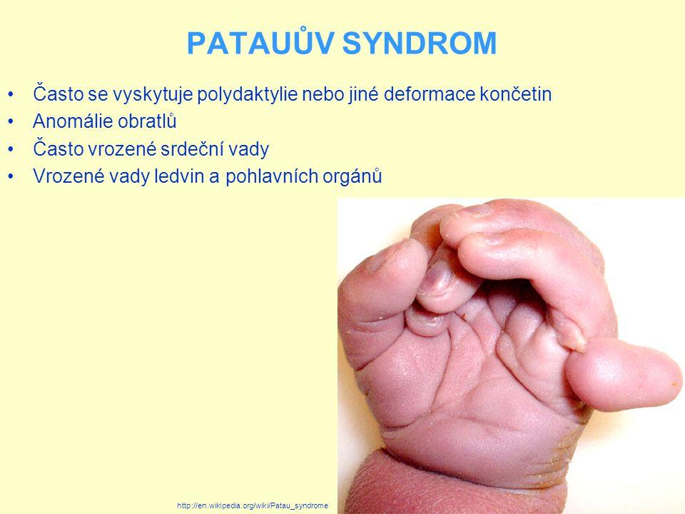 PATAUŮV SYNDROM Diagnostika je možná prenatálně s použitím screeningových metod jako jsou biochemická vyšetření krve matky, ultrazvuková vyšetření apod.
