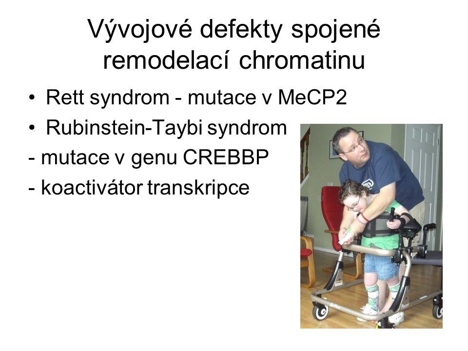 Vývojové defekty spojené remodelací chromatinu Rett syndrom - mutace v MeCP2 Rubinstein-Taybi syndrom - mutace v genu CREBBP - koactivátor transkripce