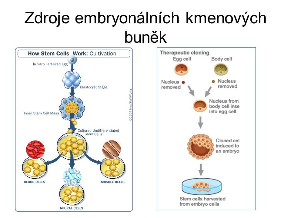 Zdroje embryonálních kmenových buněk