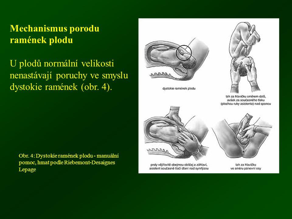 Mechanismus porodu ramének plodu U plodů normální velikosti nenastávají poruchy ve smyslu dystokie ramének (obr. 4). Obr. 4: Dystokie ramének plodu -