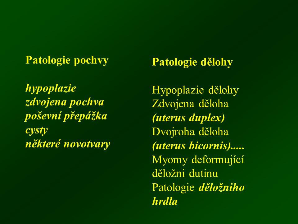Patologie pochvy hypoplazie zdvojena pochva poševní přepážka cysty některé novotvary Patologie dělohy Hypoplazie dělohy Zdvojena děloha (uterus duplex