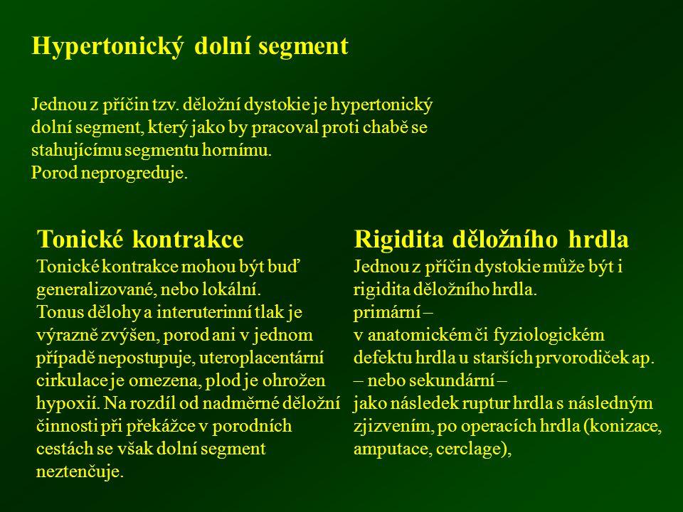 Hypertonický dolní segment Jednou z příčin tzv. děložní dystokie je hypertonický dolní segment, který jako by pracoval proti chabě se stahujícímu segm