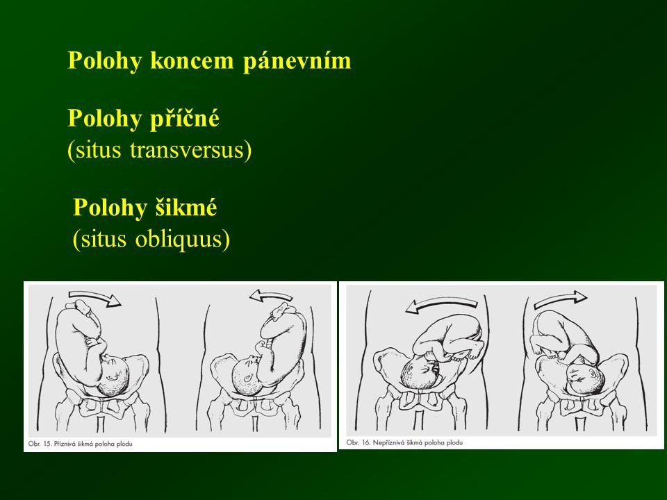 Polohy koncem pánevním Polohy příčné (situs transversus) Polohy šikmé (situs obliquus)