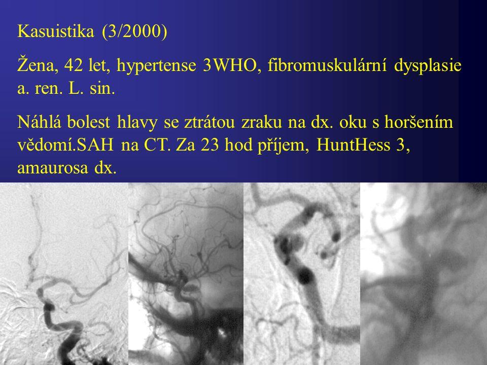 Kasuistika (3/2000) Žena, 42 let, hypertense 3WHO, fibromuskulární dysplasie a. ren. L. sin. Náhlá bolest hlavy se ztrátou zraku na dx. oku s horšením