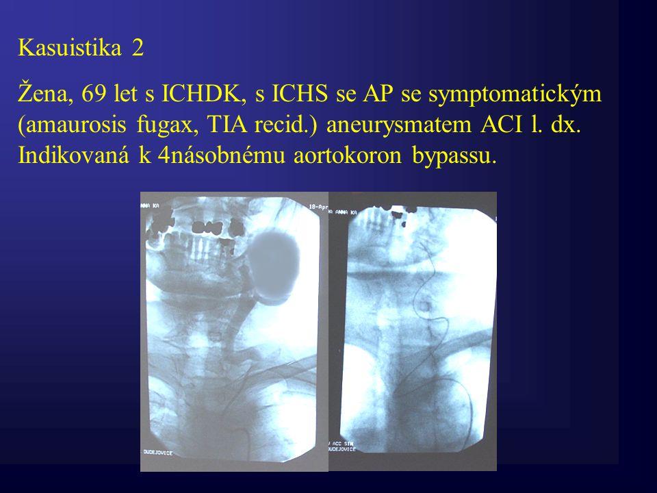 Kasuistika 2 Žena, 69 let s ICHDK, s ICHS se AP se symptomatickým (amaurosis fugax, TIA recid.) aneurysmatem ACI l. dx. Indikovaná k 4násobnému aortok