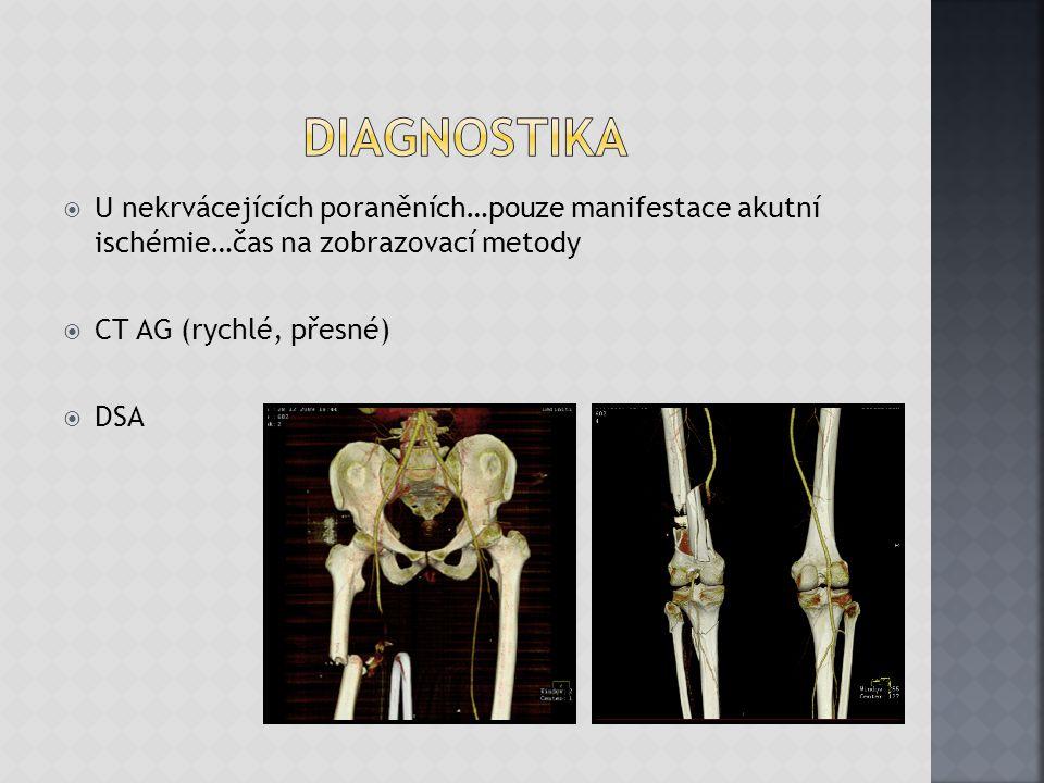  V naprosté většině chirurgická…rekonstrukce postiženého úseku cévy….resekce, náhrada (autologní štěp) …..bypass …..anastomóza  Endovaskulární - např.trauma hrudní aorty