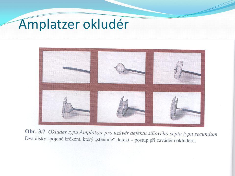 Amplatzer okludér