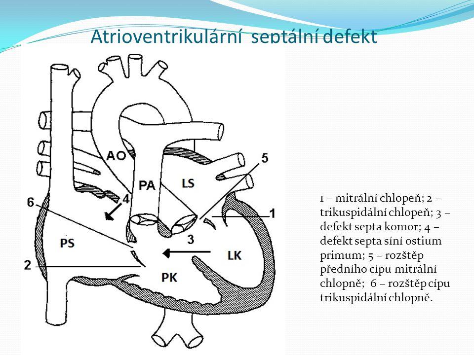 Atrioventrikulární septální defekt Obr.