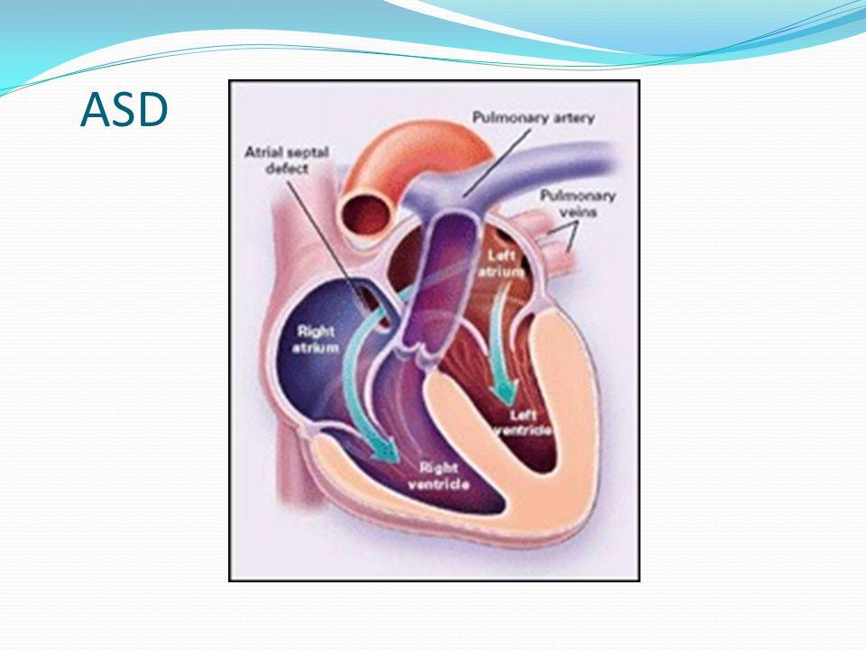 Defekt síňového septa: patofyziologie téměř vyrovnané tlaky LS-PS, L-P proudění dáno vyšší poddajností pravé komory, nižším tlakem v pravé síni zkrat není spojen s žádným šelestem objemové zatížení pravé komory, dilatace PK, dilatace PS Při chorobách, kdy se snižuje poddajnost levé komory a stoupá tlak v levé síni, se velikost zkratu zvětšuje (srdeční selhání, arteriální hypertenze) Plicní cirkulace reaguje na zvýšený průtok vazodilatací, dlouho nezvýšené hodnoty tlaku Plicní hypertenze: při poškození endotelu plicních cév vysokým průtokem,vyčerpání vazodilatační rezervy, dojde ke vzniku PH, většinou kolem 50let Při vzniku PH, poklesu poddajnosti pravé komory, trikuspidální regurgitaci se zkrat levo-pravý může zmenšit, ev.