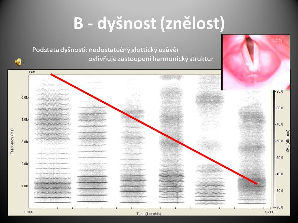 B - dyšnost (znělost) Podstata dyšnosti: nedostatečný glottický uzávěr ovlivňuje zastoupení harmonický struktur