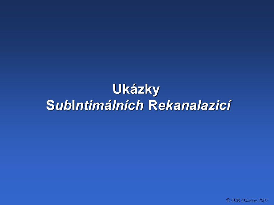 Ukázky SubIntimálních Rekanalazicí © OIR Olomouc 2007