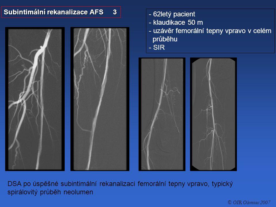 - 75letá nemocná - gangréna nohy - uzávěr AFS Subintimální rekanalizace AFS 1 MR angiografie, uzávěr AFS vlevo v celém průběhu © OIR Olomouc 2007