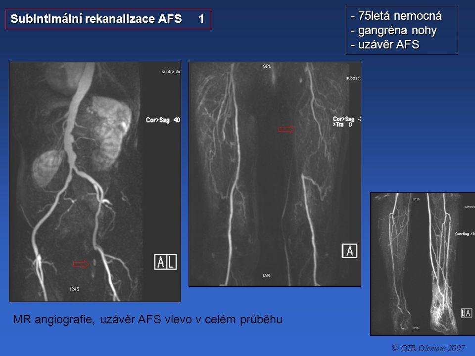 Subintimální rekanalizace AFS 2 - 75letá nemocná - gangréna nohy - uzávěr AFS 1.