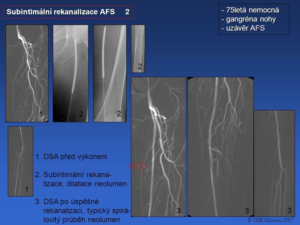 Subintimální rekanalizace AFS 2 - 75letá nemocná - gangréna nohy - uzávěr AFS 1. DSA před výkonem 2. Subintimální rekana- lizace, dilatace neolumen 3.