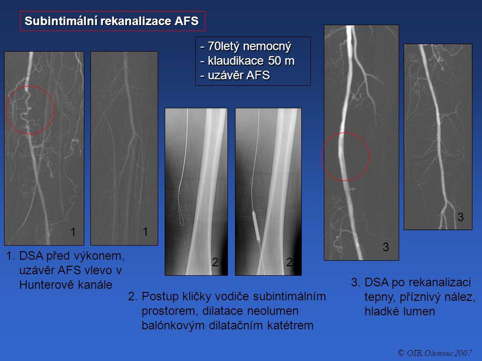 - 70letý nemocný - klaudikace 50 m - uzávěr AFS Subintimální rekanalizace AFS 1. DSA před výkonem, uzávěr AFS vlevo v Hunterově kanále 2. Postup kličk