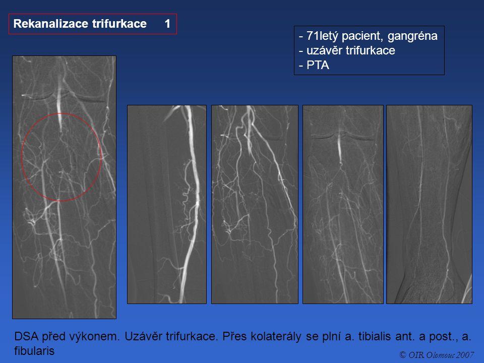 Rekanalizace trifurkace 1 - 71letý pacient, gangréna - uzávěr trifurkace - PTA DSA před výkonem. Uzávěr trifurkace. Přes kolaterály se plní a. tibiali