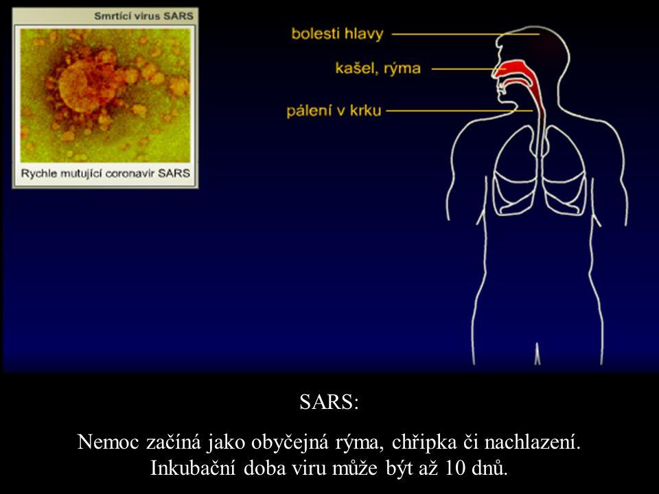 SARS: Nemoc začíná jako obyčejná rýma, chřipka či nachlazení. Inkubační doba viru může být až 10 dnů.