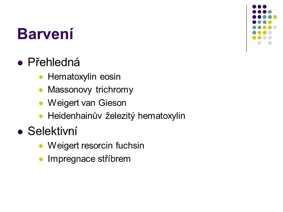 Barvení Přehledná Hematoxylin eosin Massonovy trichromy Weigert van Gieson Heidenhainův železitý hematoxylin Selektivní Weigert resorcin fuchsin Impre