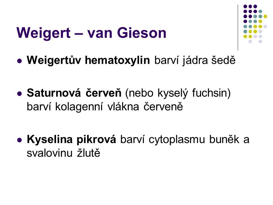 Weigert – van Gieson Weigertův hematoxylin barví jádra šedě Saturnová červeň (nebo kyselý fuchsin) barví kolagenní vlákna červeně Kyselina pikrová bar