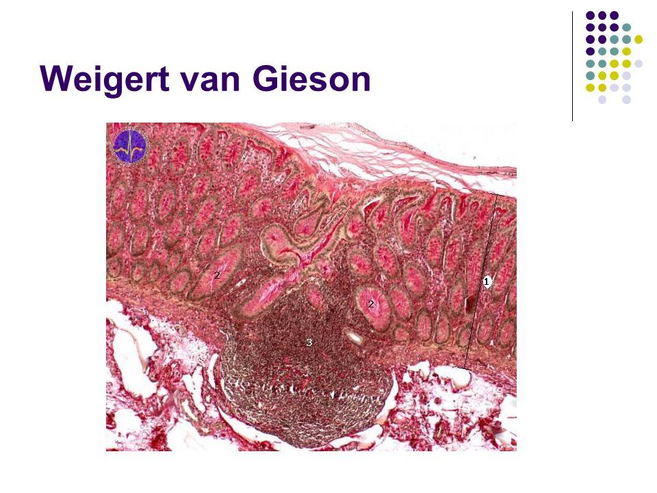 Weigert van Gieson Nalepení řezů na podložní sklo