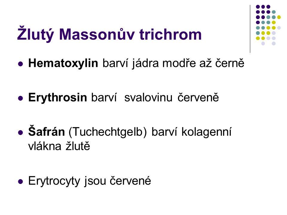 Žlutý Massonův trichrom Hematoxylin barví jádra modře až černě Erythrosin barví svalovinu červeně Šafrán (Tuchechtgelb) barví kolagenní vlákna žlutě E