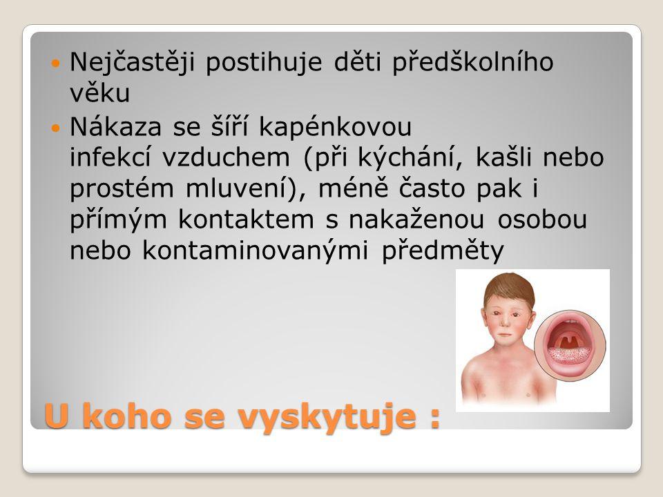 U koho se vyskytuje : Nejčastěji postihuje děti předškolního věku Nákaza se šíří kapénkovou infekcí vzduchem (při kýchání, kašli nebo prostém mluvení)