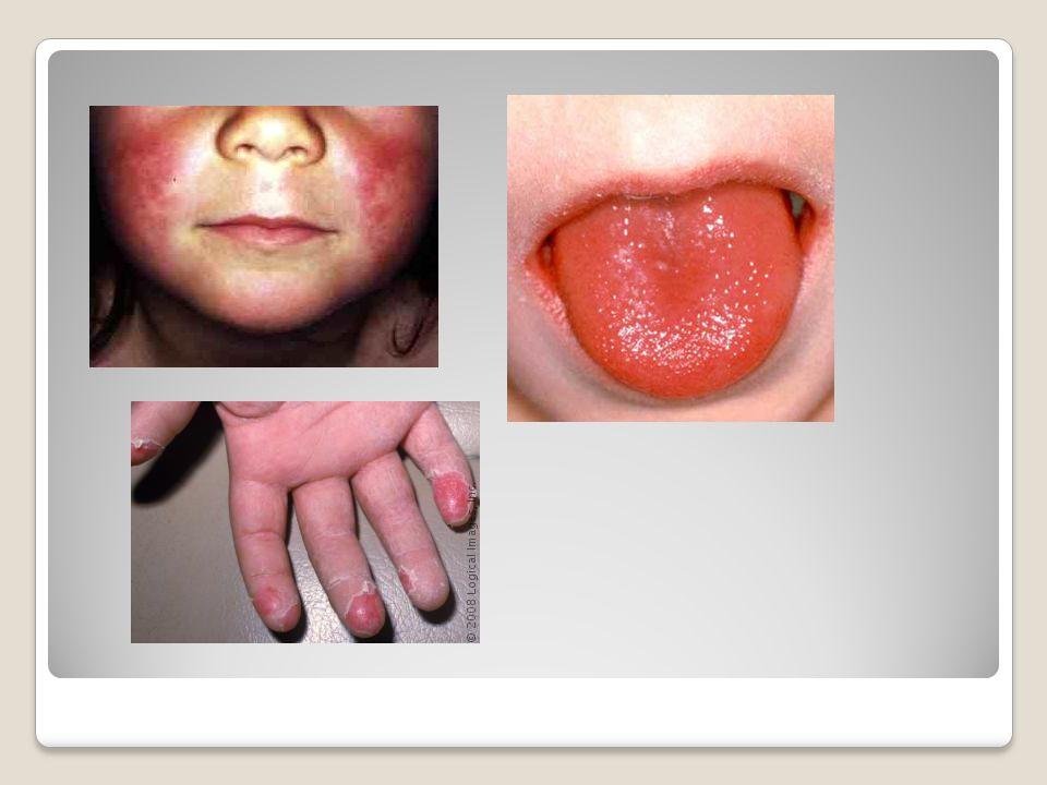 Prevence : V souvislosti s poměrně velkým množstvím bacilonosičů nelze než doufat v kvalitní hygienické návyky ve společnosti (zakrývání úst při kašli a kýchání), děti se mohou nakazit při dělení o jídlo a nápoje nebo z kontaminovaného prachu či hraček, proto i zde je důležité poučení o častém mytí rukou Očkování neexistuje