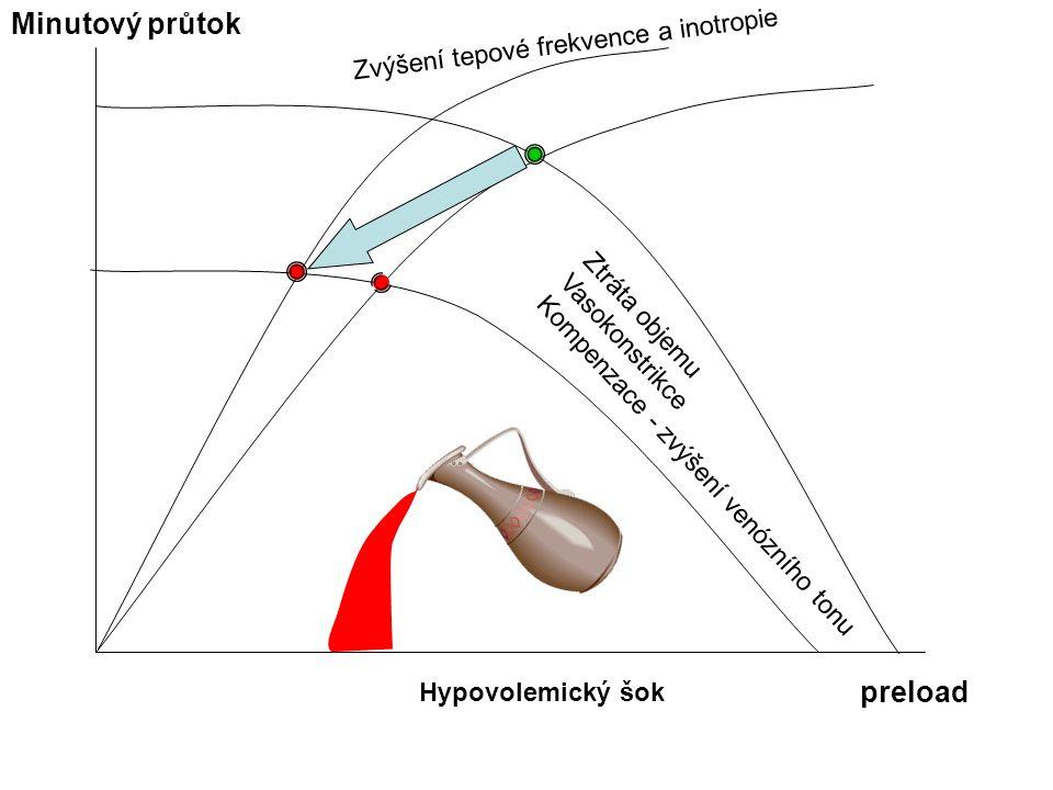 Hypovolemický šok Minutový průtok preload Ztráta objemu Vasokonstrikce Kompenzace - zvýšení venózního tonu Zvýšení tepové frekvence a inotropie