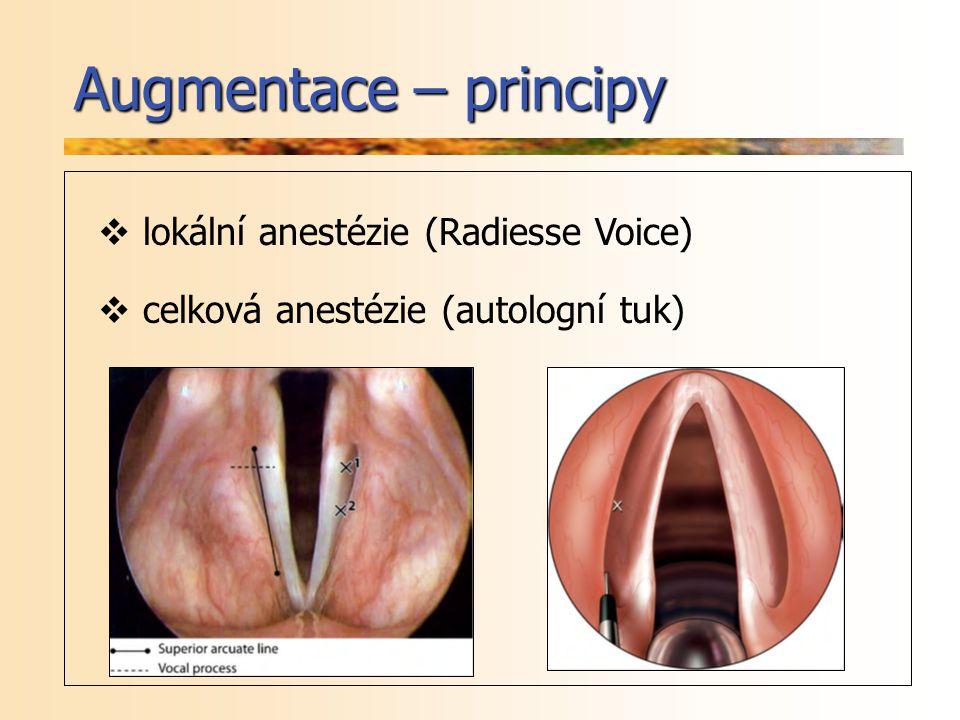 Augmentace – principy  lokální anestézie (Radiesse Voice)  celková anestézie (autologní tuk)