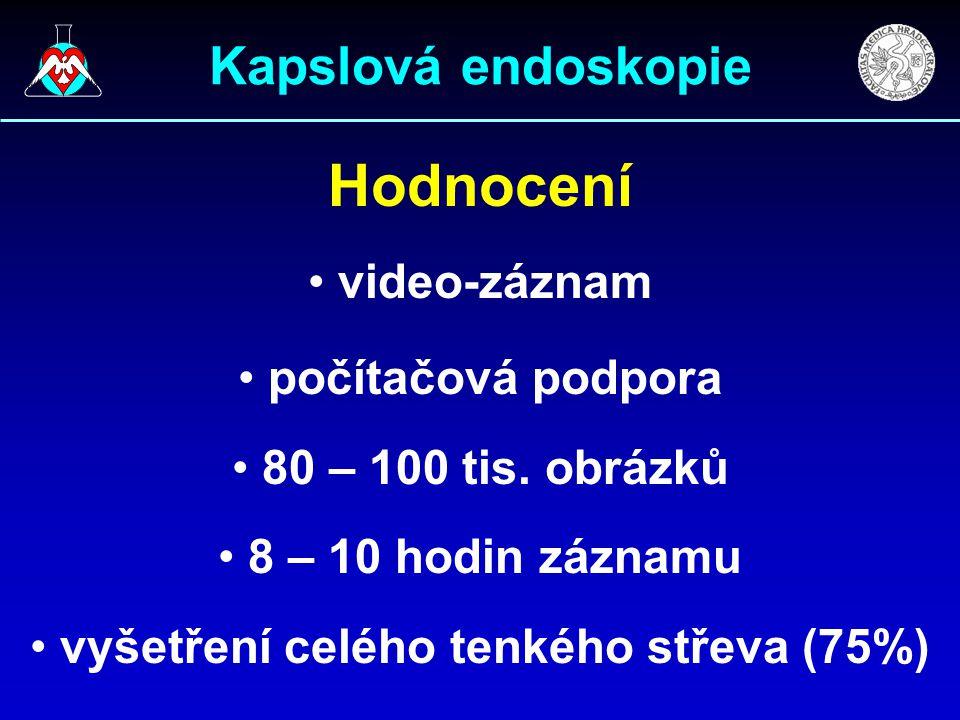 Hodnocení video-záznam počítačová podpora 80 – 100 tis. obrázků 8 – 10 hodin záznamu vyšetření celého tenkého střeva (75%)
