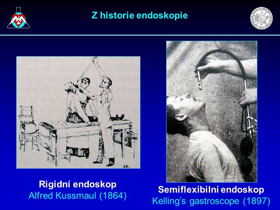 Z historie endoskopie Rigidní endoskop Alfred Kussmaul (1864) Semiflexibilní endoskop Kelling's gastroscope (1897)